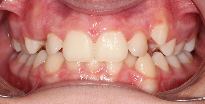 Male teeth before treatment for dental crowding and misalignment before treatment adult braces required